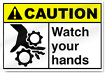 Watch Your Hands Caution Signs